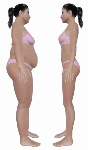 Hashimoto S Hypothyroidism And Weight Loss How Gut Bacteria Make