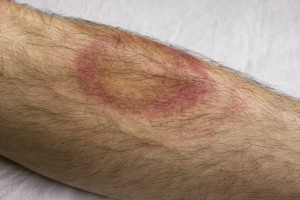 Lyme Disease Treatment Burlington